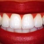 Hvite tenner, helt avgjørende!