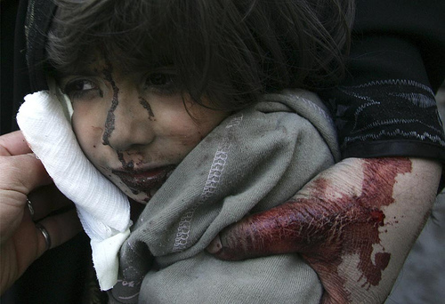 Nyhetsbildet- Lar du deg påvirke av barnedrap og terror?
